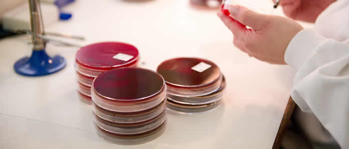 horizontal banner showing petri dishes in lab