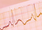Advancing diagnosis of heart disorders