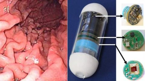 A photograph of inside the gastrointestinal tract beside the prototype video pill