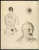 Drawing of two sufferers of the Pox. One person's back and another's face, showing large pustules and growths