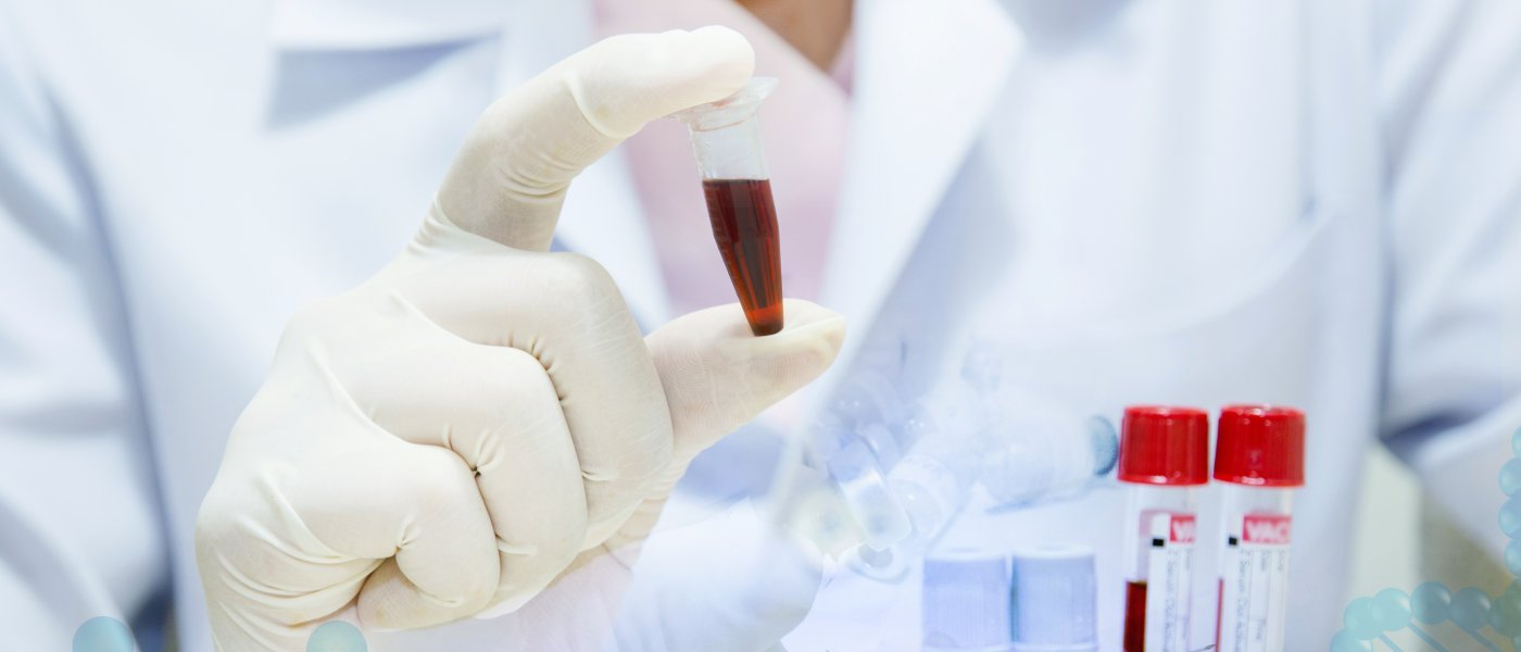 Scientist with blood sample
