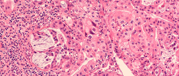 Image of a pancreatic cancer histology section