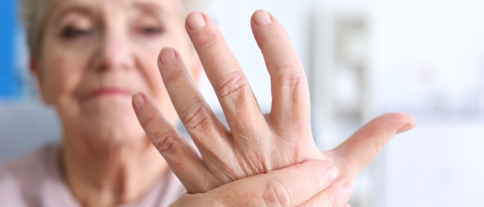 Image of a hand with rheumatoid arthritis