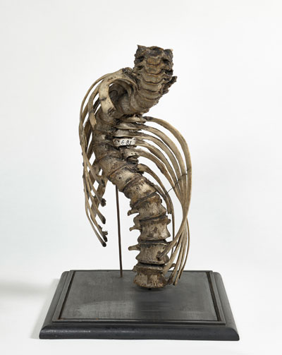 William Hunter and assistants, Severe lateral curvature of the spine, 1746–83 © The Hunterian, University of Glasgow.