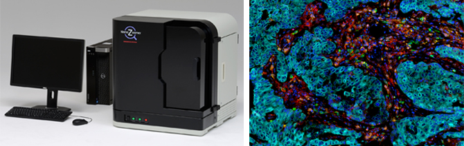Image of S60 NanoZoomer Scanner and digital image multiplex IHC analysis of breast carcinoma