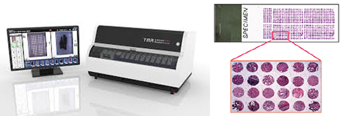 3DHISTECH TMA Grandmaster and samples of a tissue microarray