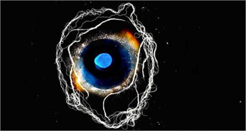 artwork by Susan Aldworth: long black background with a central ambiguous image resembling both a human eye and a blue and yellow galaxy, around which long stringls of white float like electricity or the tendrils of a nervous system cells