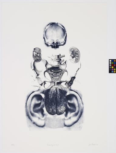 artwork by Susan Aldworth: a white print with collaged medical illustrations - at the top, the scan of a human skull, below it the black and white illustration of the end of a human spine and sacral bone, with smaller detailed illustrations of kidneys flanking it. At the bottom, a photorealistic illustration of a human brain, flanked by two disproportionately big black-and-white old photos of ears