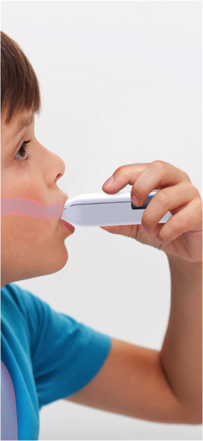 A young boy holds the Nebu-Flow nebulizer to his mouth. An overlay graphic shows medication being dispensed from the nebulizer into the boy's mouth.